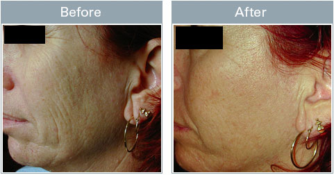 Skin Care Skin Micro Ipl For Improvement Of Acne Tag