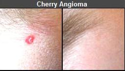 Skin Care Skin Tag Removal Enlarged Capillary Removal