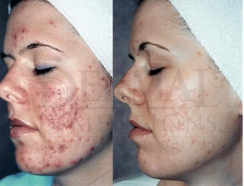 Say To Goodbye To Acne Scarring And Signs Of Aging Dermal