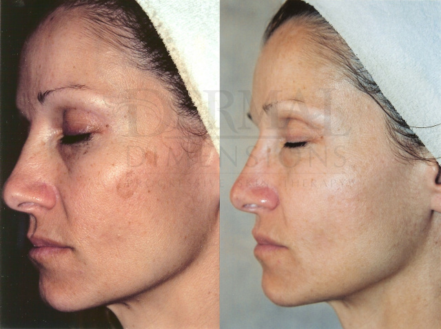 Advanced Microdermabrasion facial for acne, aging, scarring for